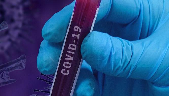 Mão segurando uma ampola de sangue escrito covid-19